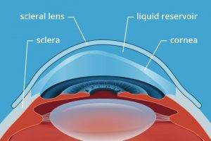scleral lens diagram 330×220 2x
